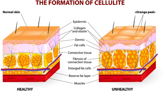 Optimum Esthetics Understanding Cellulite